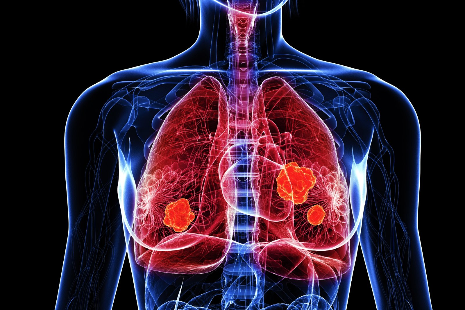thoracic-and-pulmonary-theraupetic-image-reading
