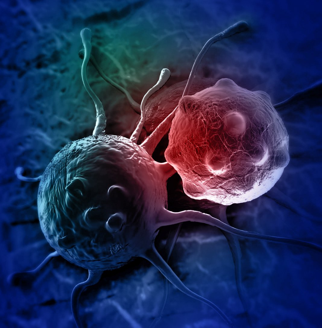 Tumor Cells -Clinical Trial Imaging
